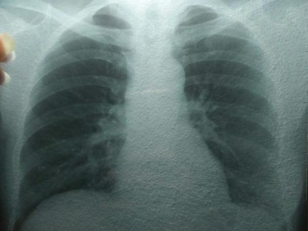 Bệnh viện 16a chẩn đoán chính xác một trường hợp có tổn thương từ phần thùy phổi
